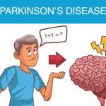 5 Early Symptoms of Parkinson's